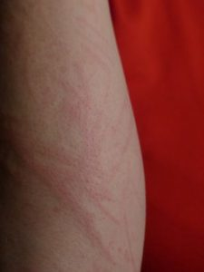 Do you get a rash from certain foods?